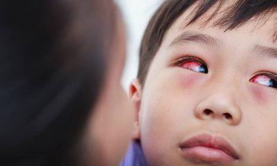 Mengenal Penyakit Pink Eye Pada Anak 241